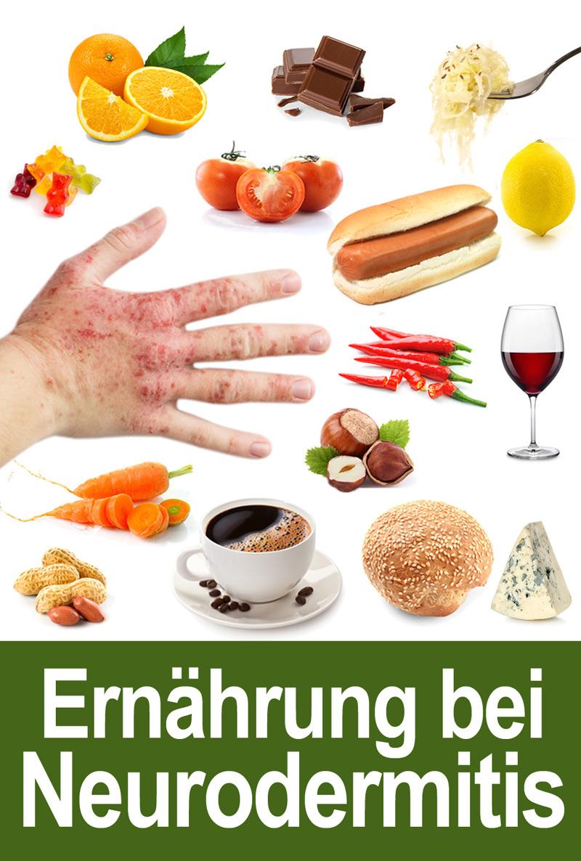 Ernährung Bei Neurodermitis