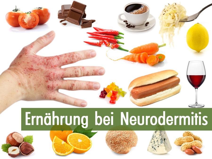 Neurodermitis Ernahrung Ratgeber Lebensmittel Kochenohne